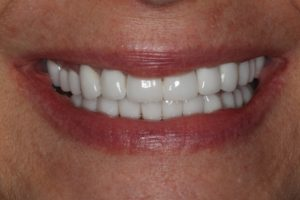 Debi-Polo-2-300x200 Dental Implants