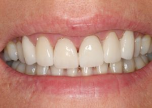 Stephanie-Coffman-2-14-17-1-e1506380219460-300x214 Gum Grafting